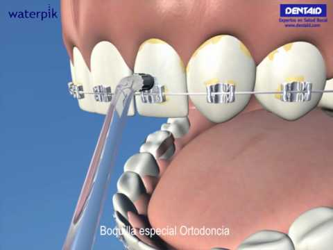 Higiene Bucal Diaria En Ortodoncia