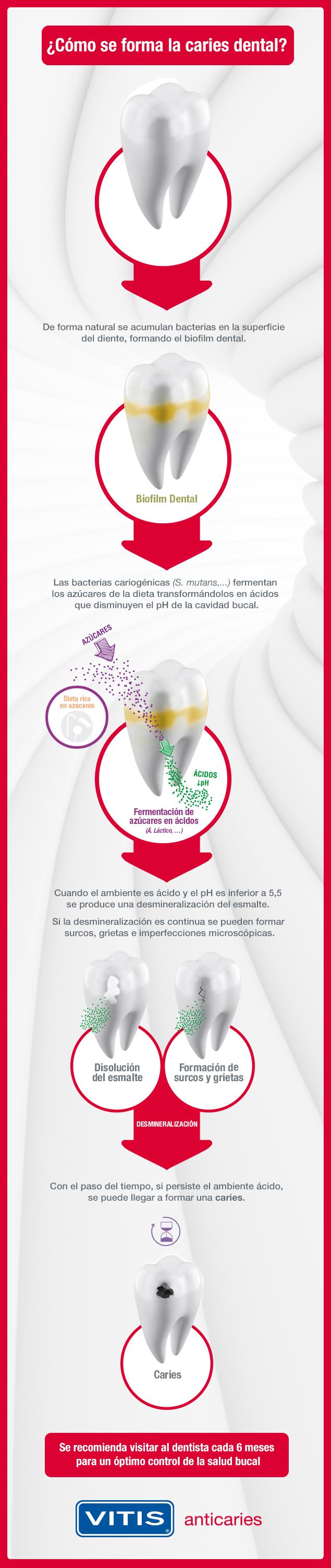 Como se forma las caries dentales