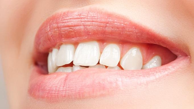 Como Prevenir Las Caries Dentales