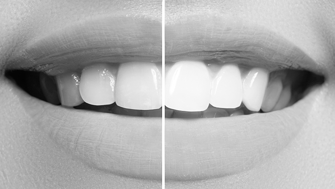 conseguir dientes blancos