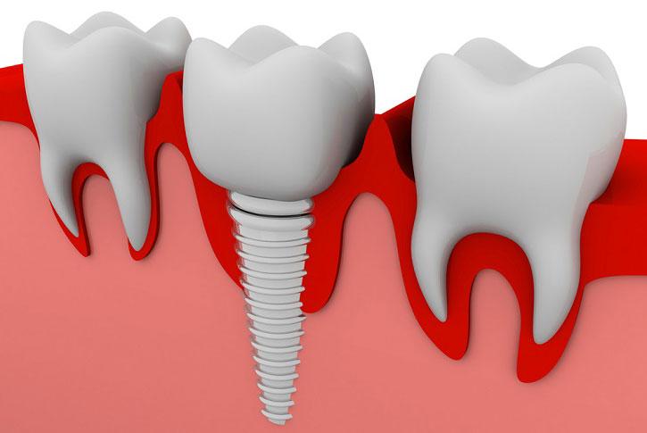 Implantes Dentales: Compañeros De Largo Recorrido