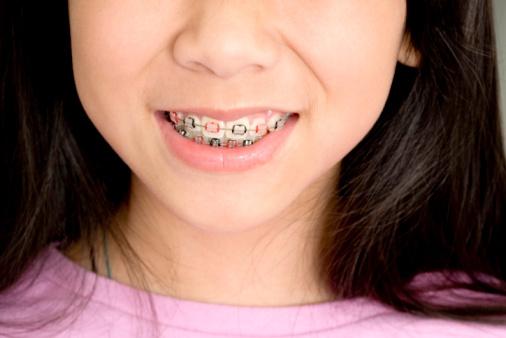 Ortodoncia E Higiene Bucal
