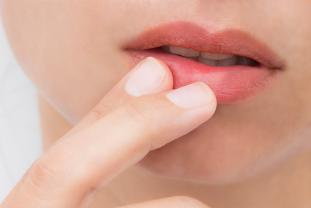 ¿Cuales Son Las Causas Y Como Prevenir Las Llagas Bucales?