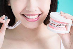 Todo Sobre La Ortodoncia Para Adultos