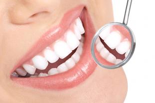 Placa Y Cálculo Dental