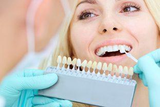 Tratamientos Estéticos Dentales