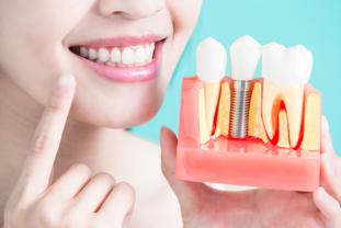 ¿Cuáles Son Las Causas De La Pérdida Dental?