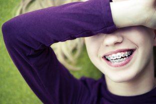 Aparatos Dentales Infantiles: ¿fijos O Removibles?