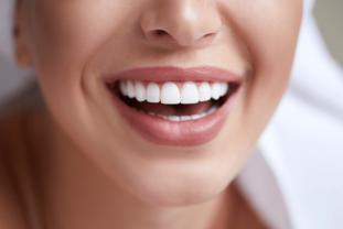 ¿Qué Es La Sonrisa Gingival? Causas Y Tratamiento